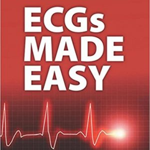Test Bank for ECGs Made Easy, 5th Edition, Aehlert